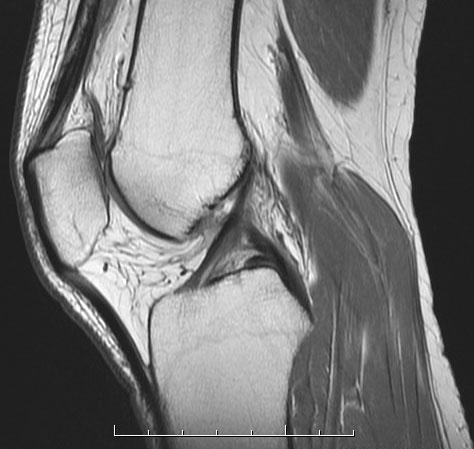 MRI MSK, MRI Knee
