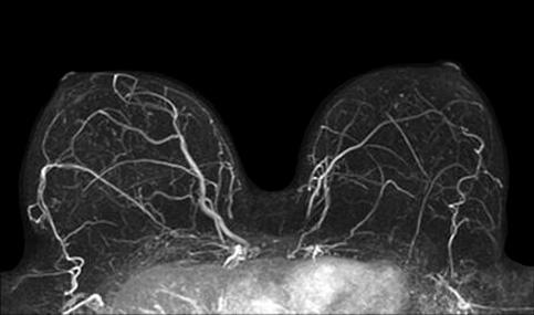 MRI Breast