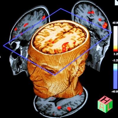 MRI Functional