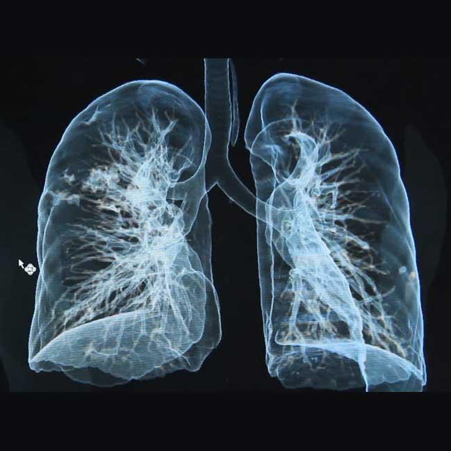 ct scan  ct sinuses  ct abdomen  ct brain  ct chest  ct